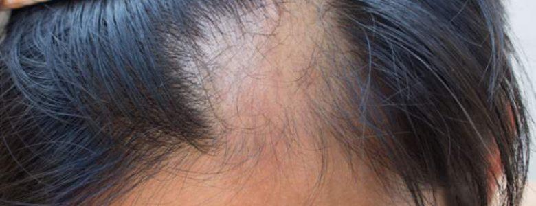 alopecia_800x526