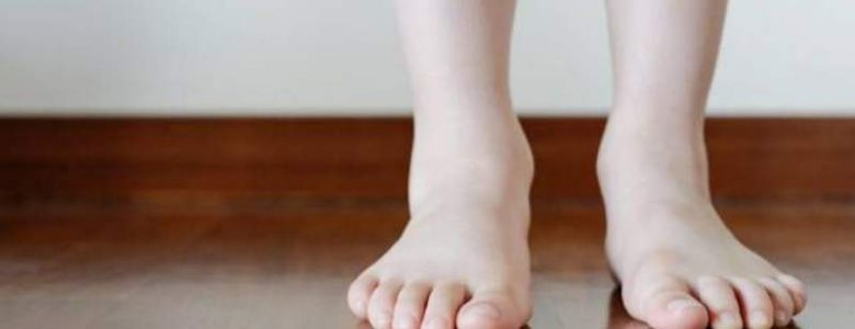 piedi piatti